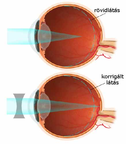 szemgyakorlatok a látás asztigmatizmusának javítására