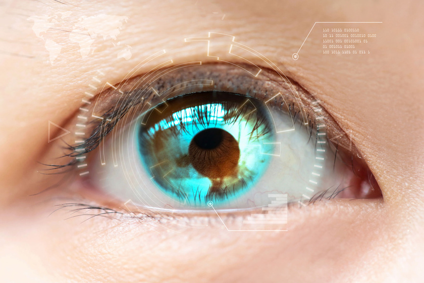 myopia következményeként látás mínusz 13, amint látható