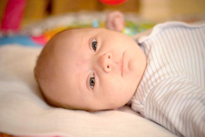 látási problémák csecsemőknél