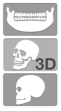 hogyan fejlesztheti a röntgensugárzást magában