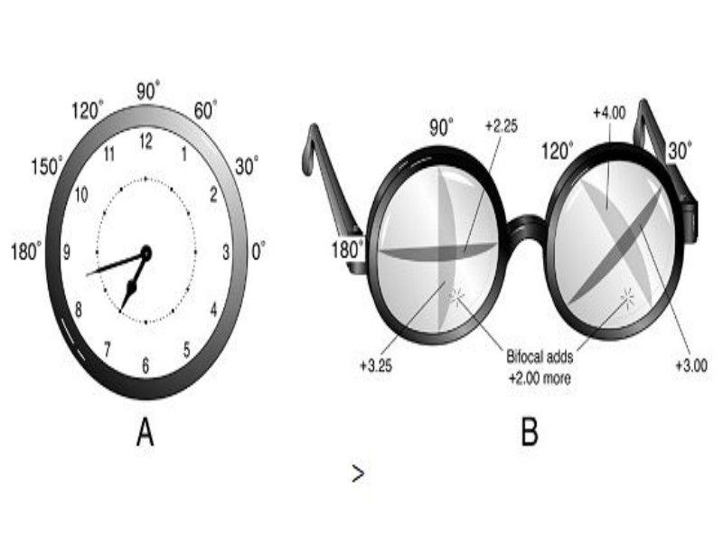 Myopiás asztigmatizmus, a kezelés jellemzői - Szemüveg -