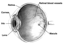 látássebészeti glaukóma
