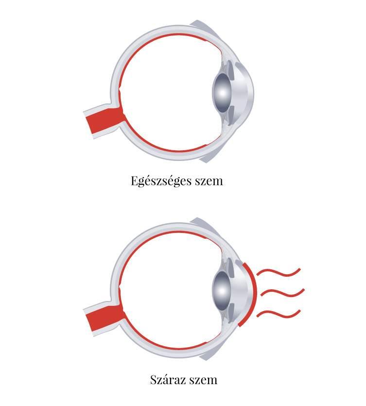helyreállítható-e a látás asztigmatizmussal
