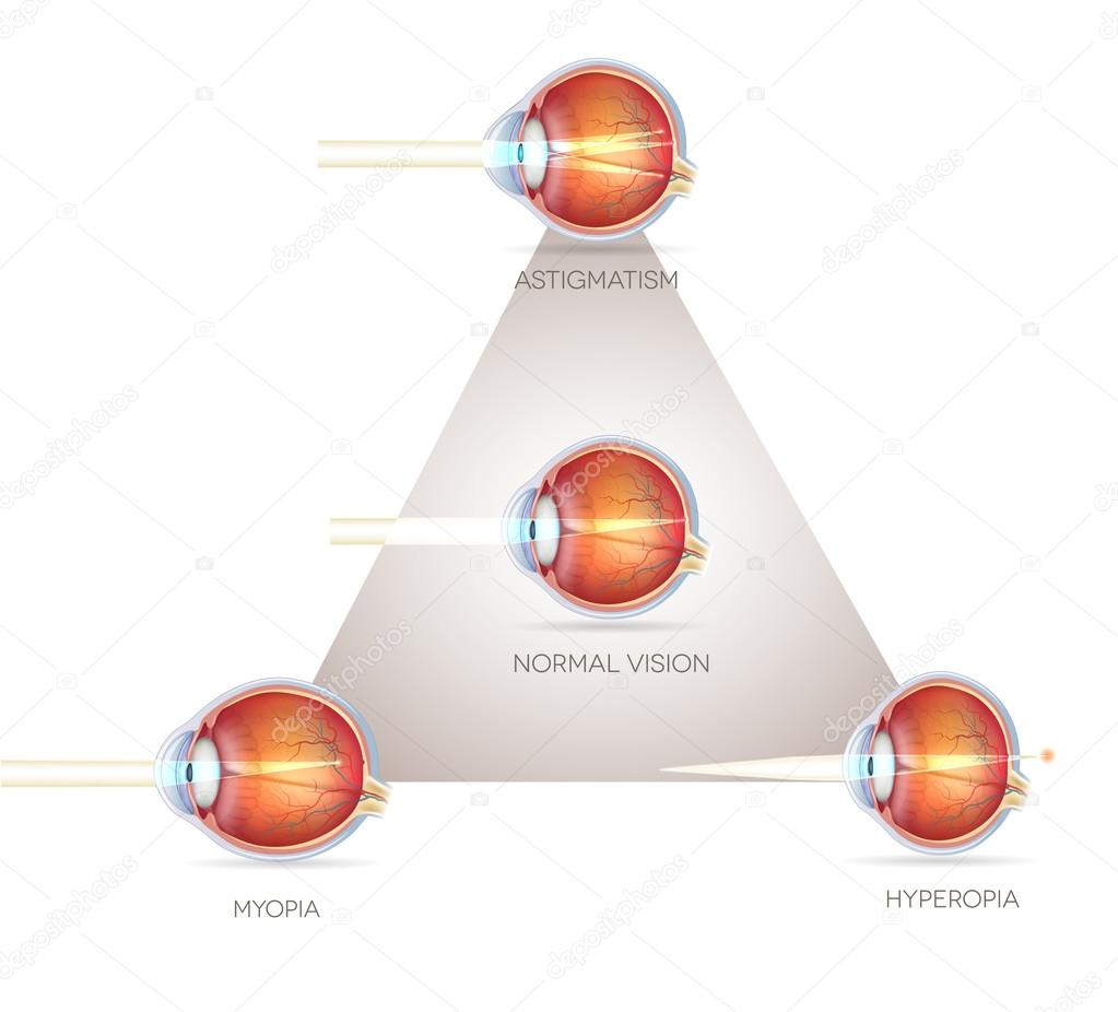 szemlátás hyperopia myopia milyen gyümölcs segíti a látást
