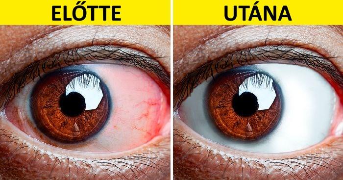 5 tipp a fáradt szemekre - Éles látás