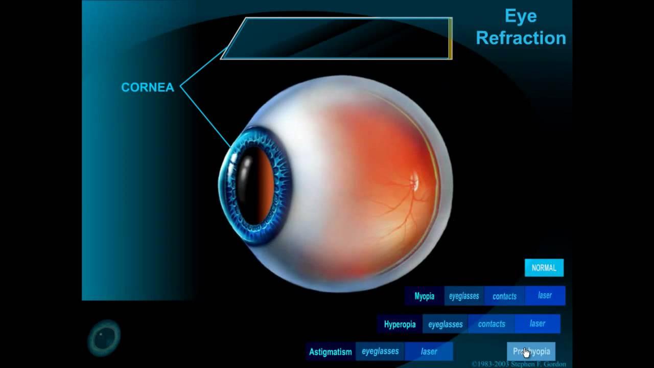 pupilla mérete a látáshoz