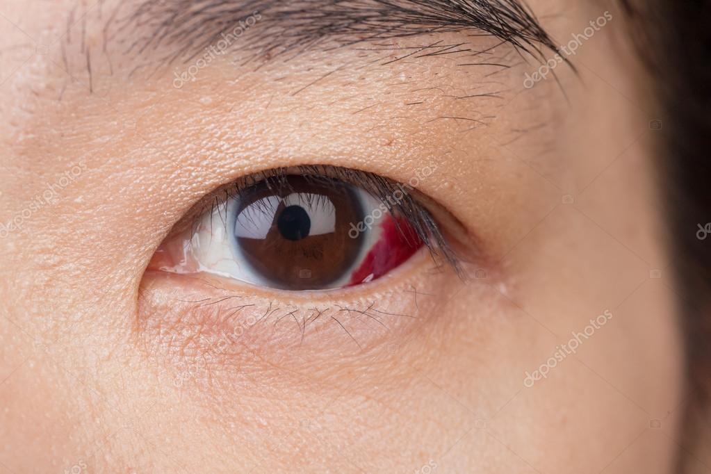 amely segít javítani a látást mínusz