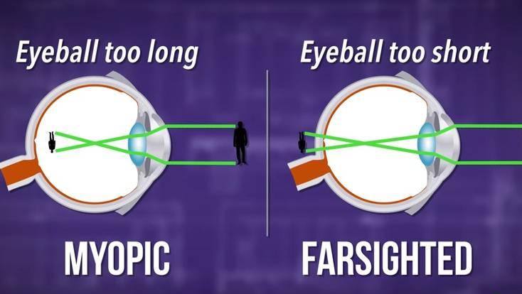 az edzőterem befolyásolja a látást