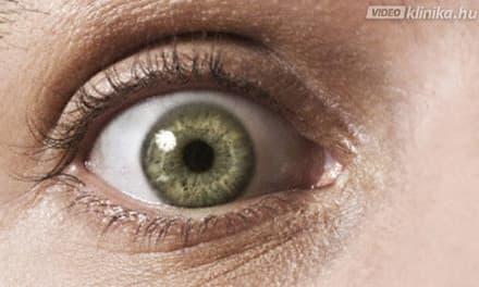 színvakság látási tesztek