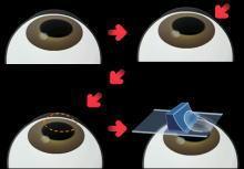 mik a látásszimulátorok