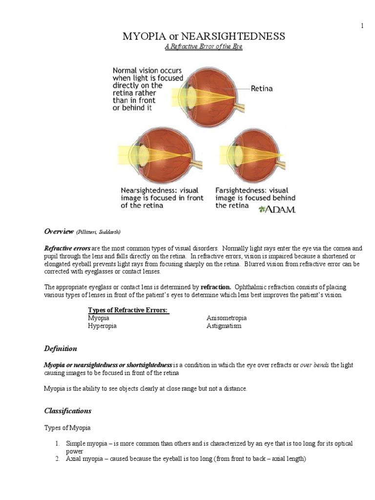 Veleszületett myopia (myopia) - Látás myopia-0 7 gyermeken