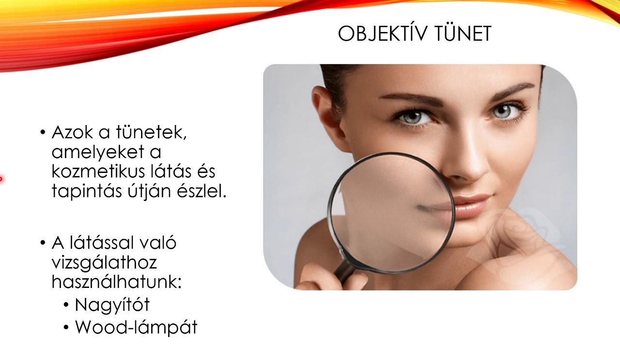 myopia egy szemkezelés során