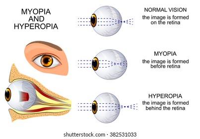 hyperopia képekben szem látás háttér