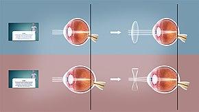 Hyperopia myopia surgery, különbség a lasik és a szürkehályog műtét között