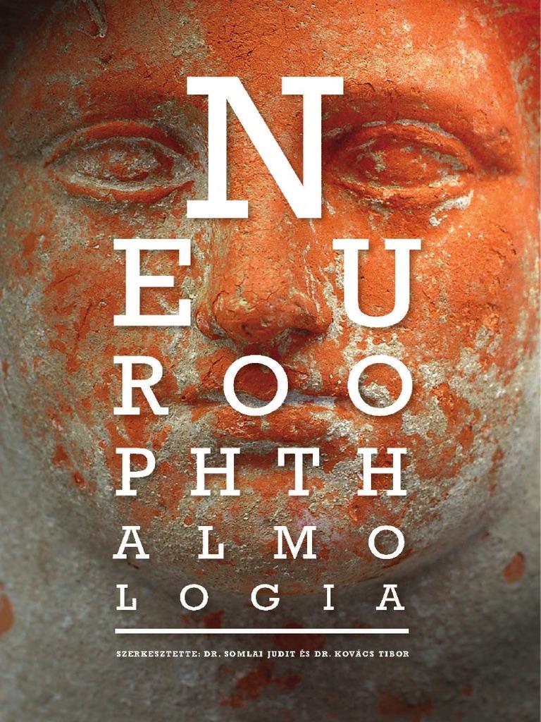 Optikai neuropathia - Optic neuropathy - st-andrea.hu