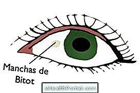 Hyperopia (távollátás) - okok, tünetek és kezelés - Gyik -