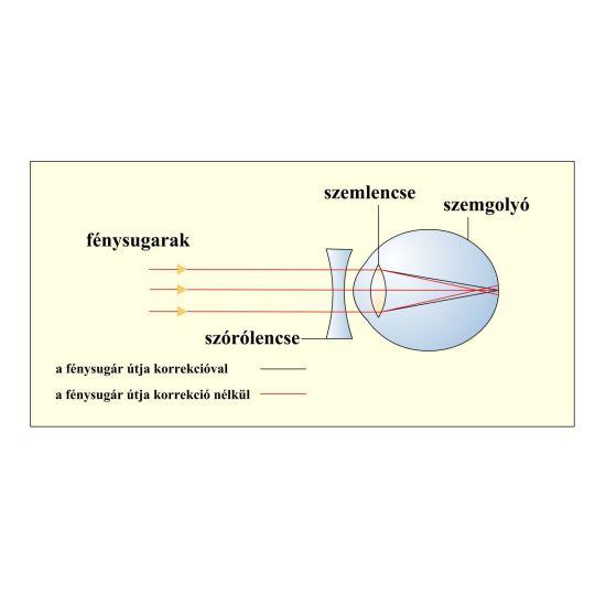 Fénytörési hibák: rövidlátás, távollátás, asztigmia (cylinderesség)