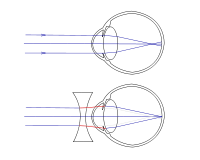 a normális látás az, hogy hány dioptriában a szenilis rövidlátás az