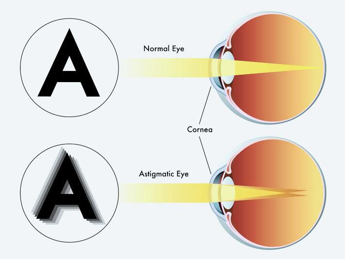 látásélesség 03 a látás romlása közben