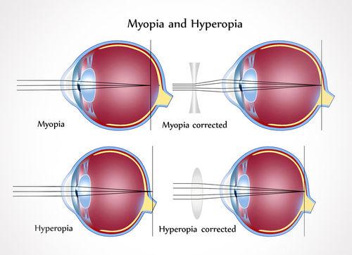 fotó látás teszt diagram