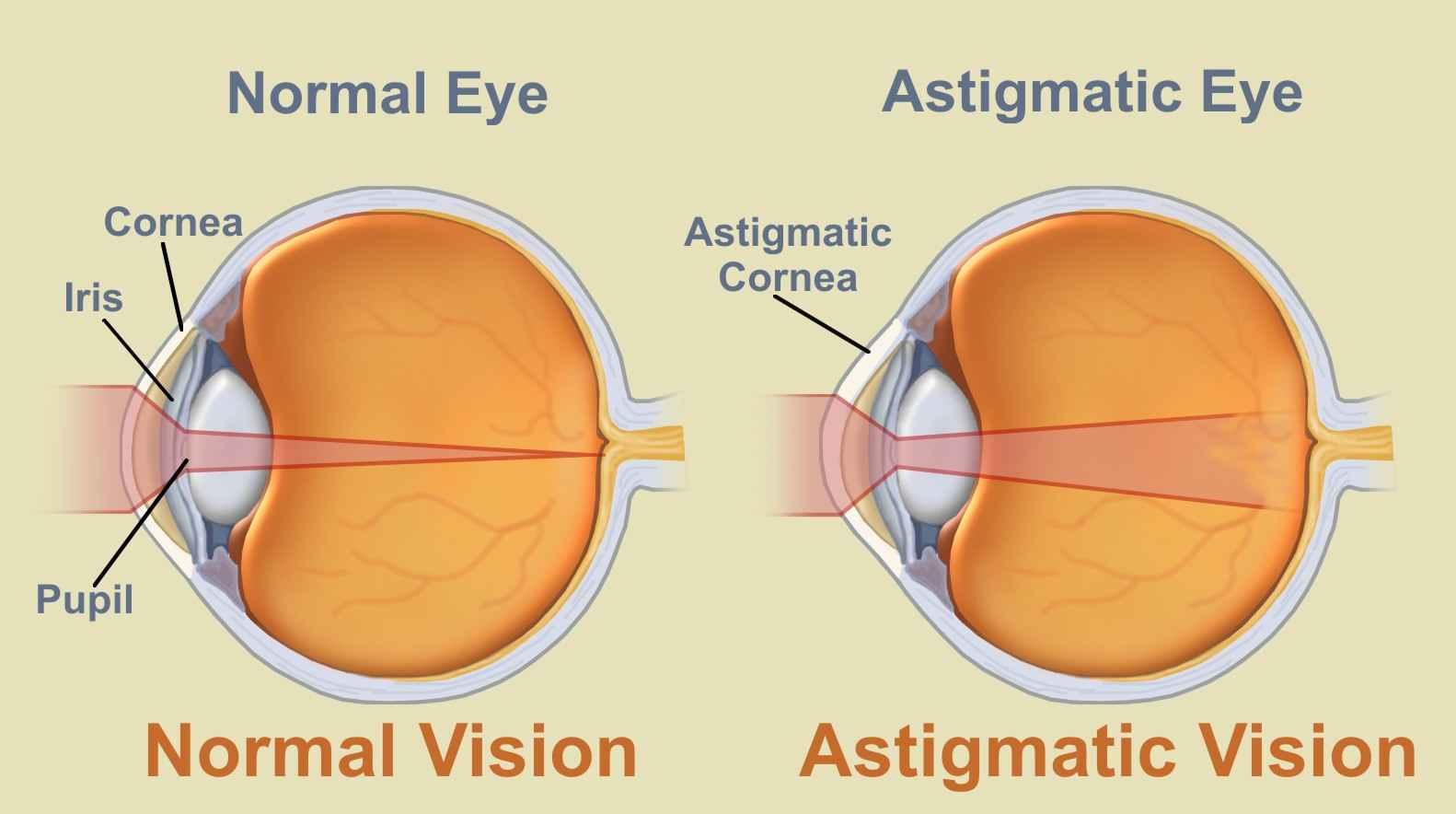 asztigmatizmus látásegységgel