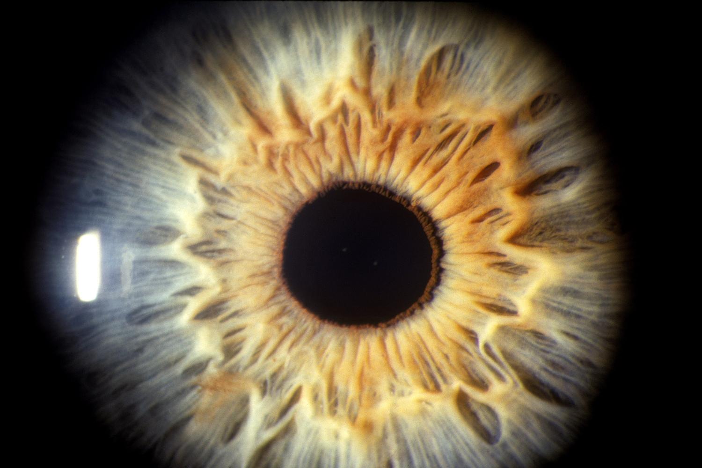 látás és idegek kezelje a látás távollátását