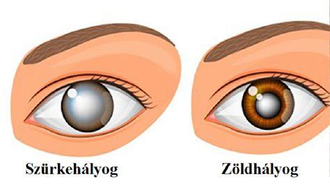 neurológus látásproblémák