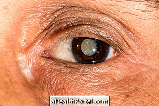 Glaukóma (zöldhályog) - Veni-Vidi | Očná klinika, Bratislava