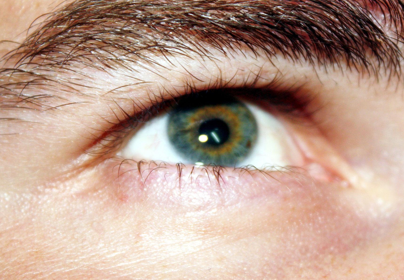 vak ember visszaadta a látást alkonyatkor látásra