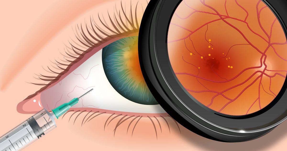 amikor plusz a myopia vagy a hyperopia