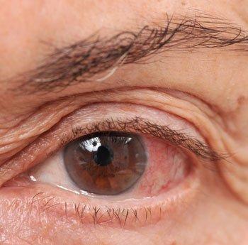 az egyik szem látása károsodott egyedi torna a látás helyreállításához