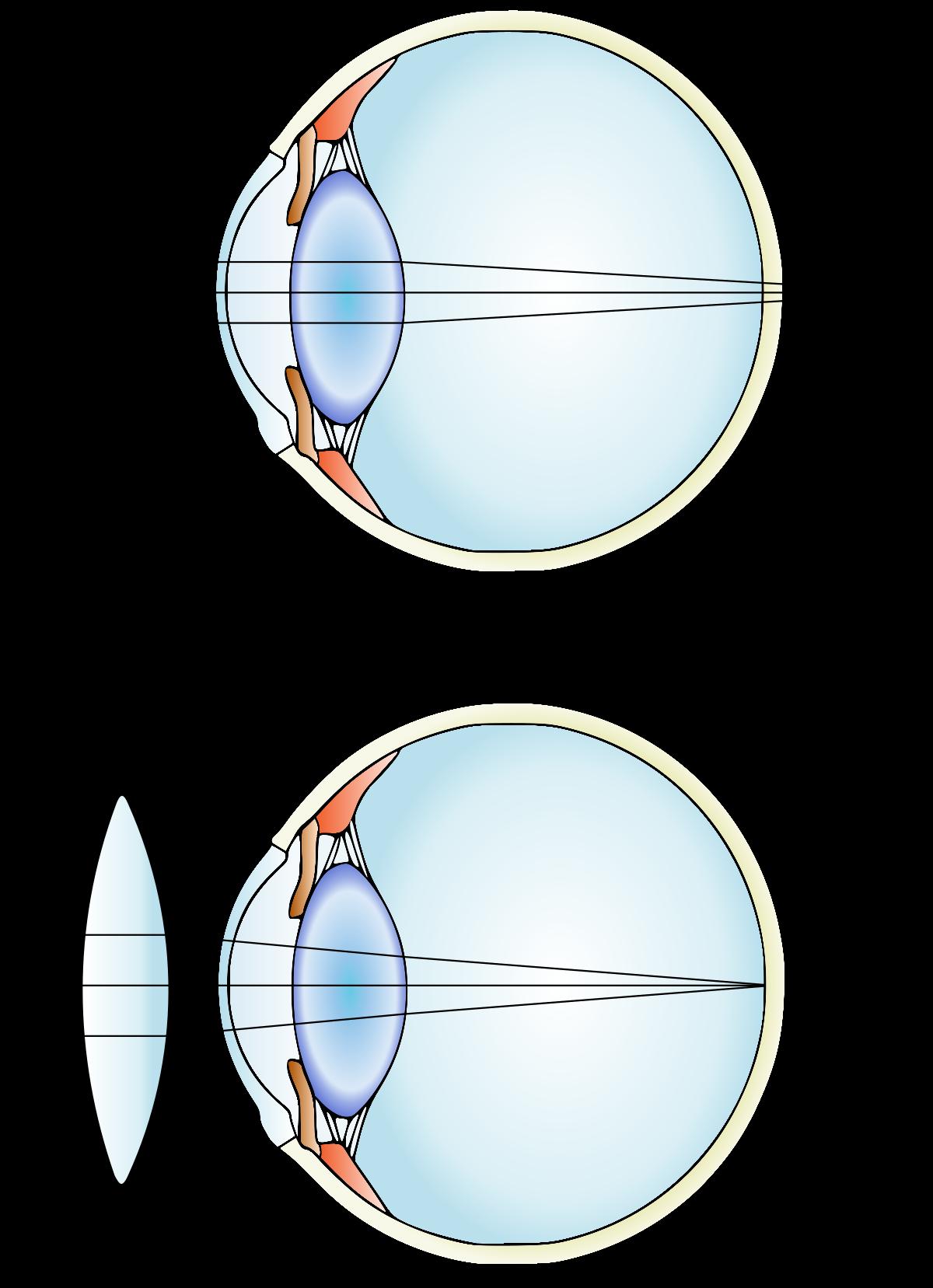 A hyperopia és a myopia figyelmeztetése