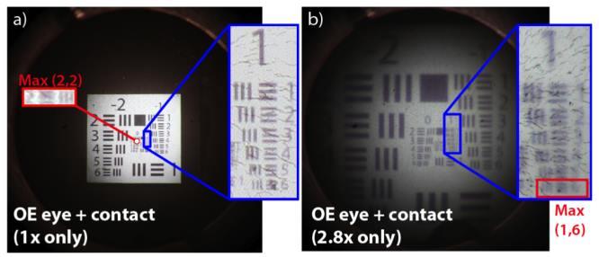 Hyperopia strabismus szemüveg nagyon erős. Hogyan javíthatja a látást, ha hyperopia van?
