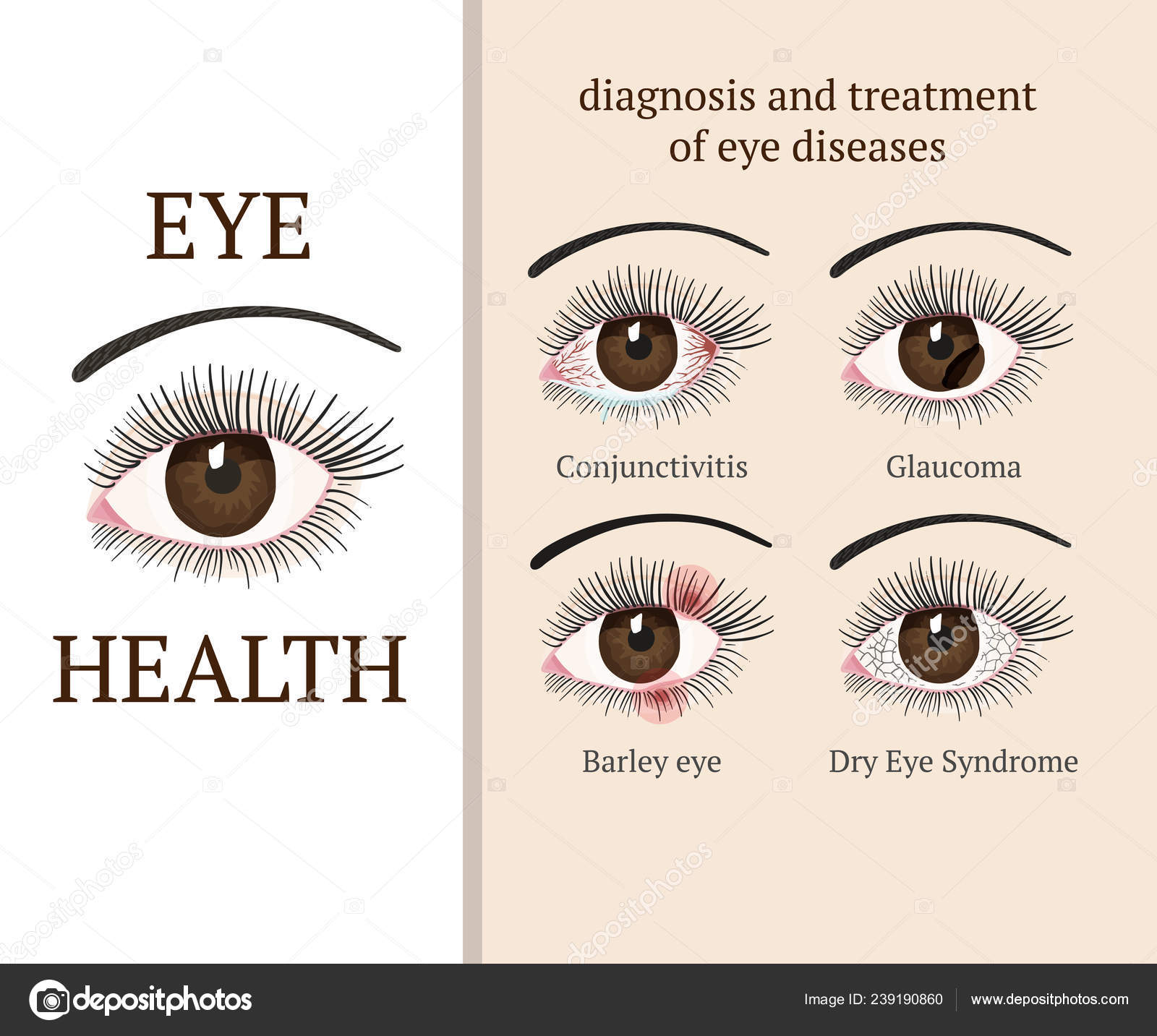 szemészet: száraz szem-szindróma