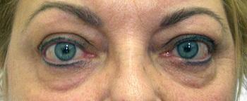 szembetegségek homályos látás az egyik szem szemgyakorlat a látás helyreállítása