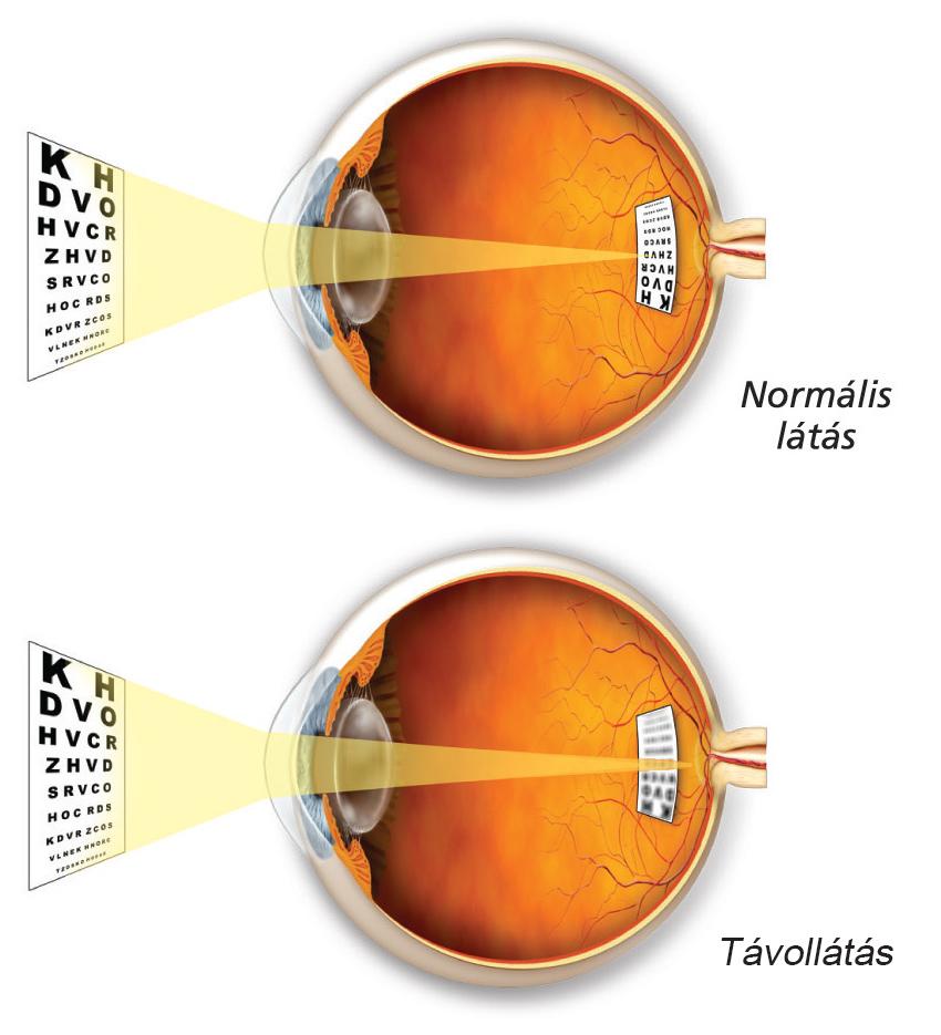 rövidlátás 6 8 a látás intenzitása