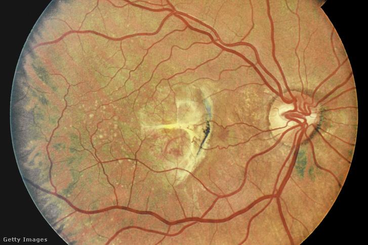 Agyi implantátummal, a szem megkerülésével állították vissza részlegesen egy vak nő látását