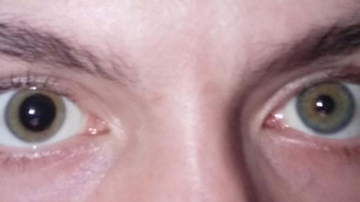 a látás távollátás
