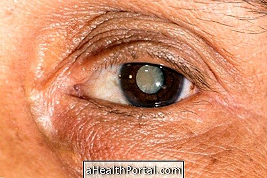 látásélesség szemcseppek a csökkenő látás oka