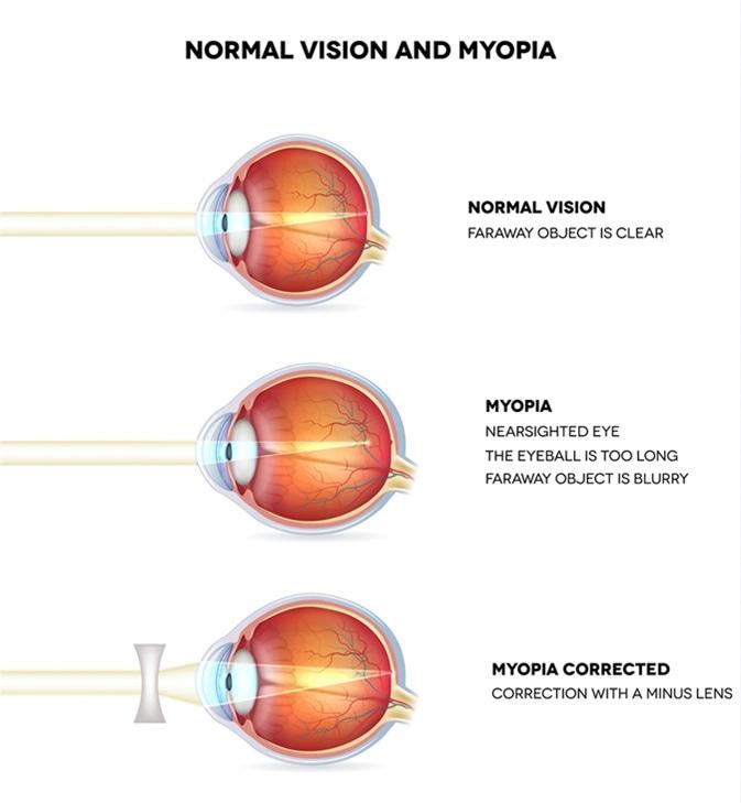 Bemutatás myopia és hyperopia szemüvegeken