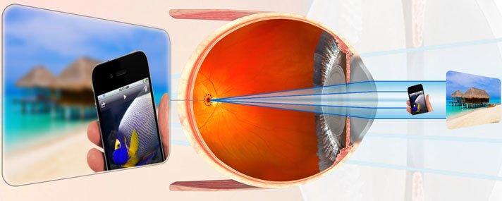 hogyan és mit kell kezelni a látással)