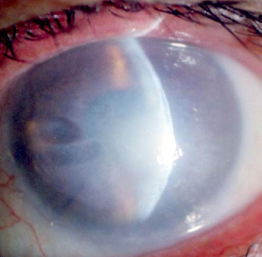 A retina elvékonyodása - Rövidlátás -