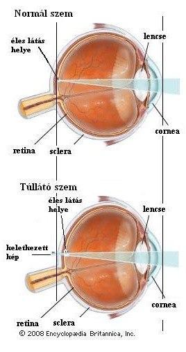 Mi a hyperopia myopia binokuláris látás?