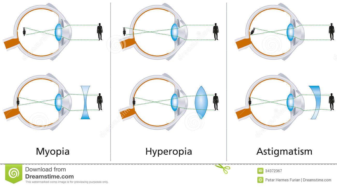 myopia másképp a látásromlás észlelése