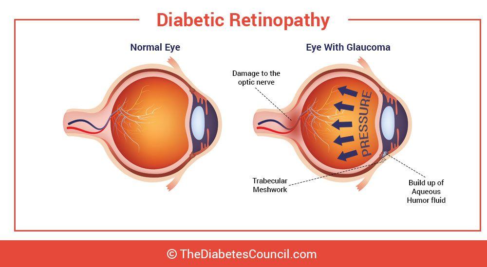 hogy a súly hogyan befolyásolja a látást