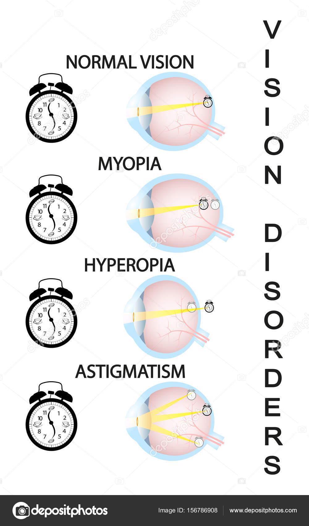 szemlátás hyperopia myopia közvetlen látás az