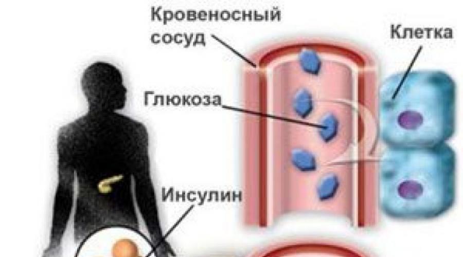 Fejfájás a homlokán, hogyan kell kezelni és kivel kell kapcsolatba lépni? - Diagnostics