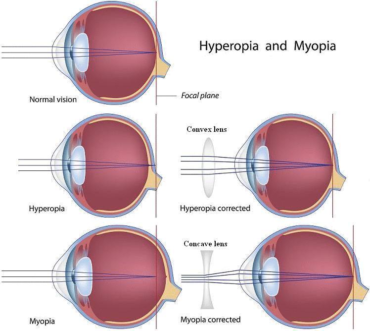 homályos látás vérszegénység panoráma látás mi ez