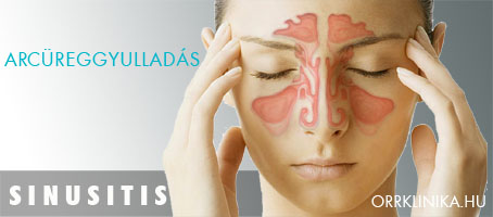 Arcüreggyulladás (orrmelléküreg-gyulladás) tünetei és kezelése - HáziPatika