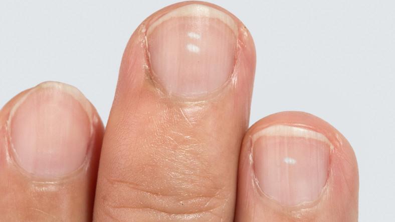 Fehér foltok a bőrön - vitiligo, mint betegség